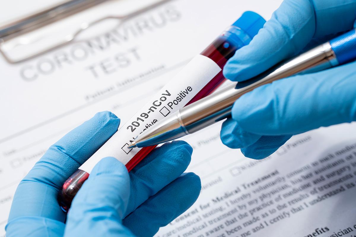 Eile tuvastasid laborid 35 koroonaviirusesse nakatunut