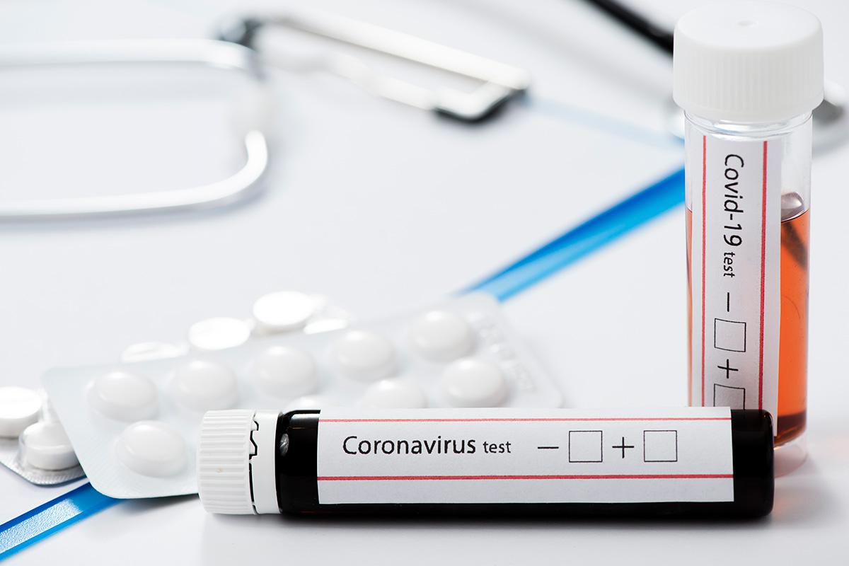 Koroonaviirus Eestis, 13. september: ööpäevaga lisandus 21 positiivset testi
